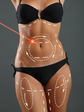 Neue Webseite www.fett-weg-mit-laser.de zur direkten Terminvereinbarung für Lipolyse-Patienten