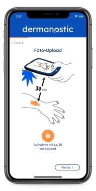 Covid19 – Chancen der Medizin: Hautarzt per App