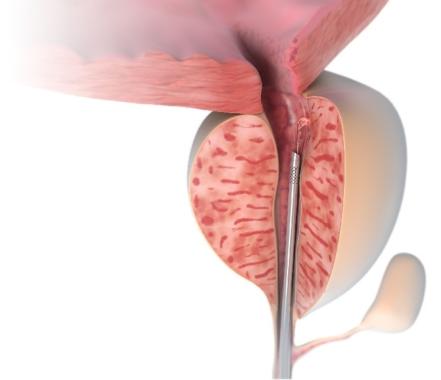 Prostata-Laser-Therapie LIFE: Infektionsarm – Schnell – Schonend – Risikopatienten geeignet